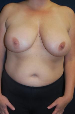 Traditional Mastopexy Without Implants: Patient 9 - Before Image