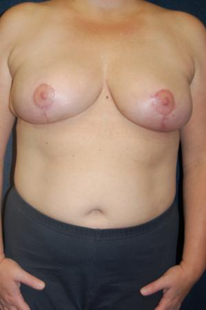 Traditional Mastopexy Without Implants: Patient 9 - After Image
