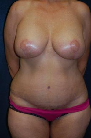 Traditional Mastopexy With Implants: Patient 7 - After Image 1
