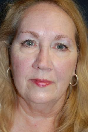 Facelift: Patient 2 - Before Image 1
