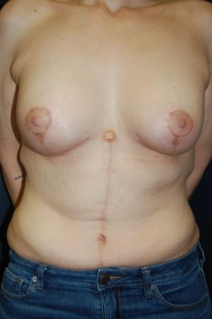 Traditional Mastopexy With Implants: Patient 17 - After Image