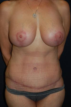 Traditional Mastopexy With Implants: Patient 16 - After Image