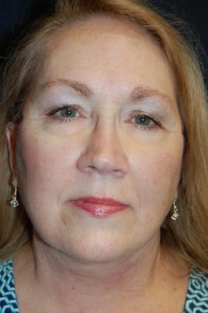 Facelift: Patient 2 - After Image 1