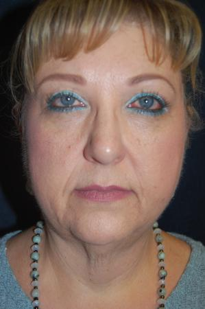Facelift: Patient 6 - Before Image 1