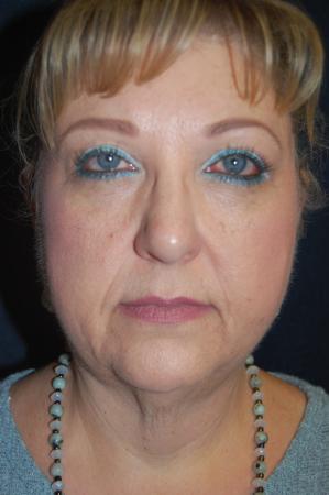 Facelift: Patient 6 - Before Image