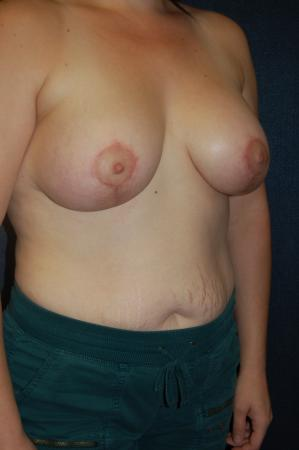 Traditional Mastopexy With Implants: Patient 19 - After Image 2