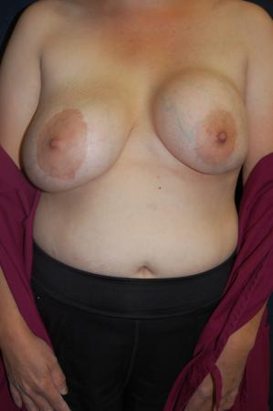 Post Implant Reoperation: Patient 7 - Before Image
