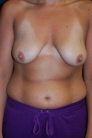 Traditional Mastopexy With Implants: Patient 13 - Before Image