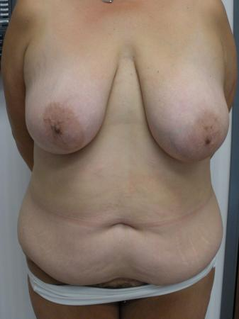 Mommy Makeover: Patient 9 - Before Image