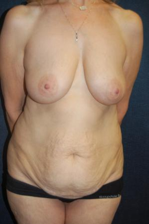 Traditional Mastopexy With Implants: Patient 16 - Before Image