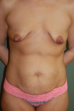 Circumareolar Mastopexy Augmentation: Patient 3 - Before Image