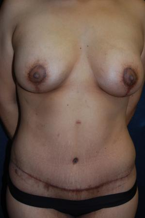 Traditional Mastopexy With Implants: Patient 15 - After Image