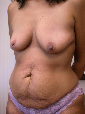 Post Bariatric Reconstruction: Patient 3 - Before Image