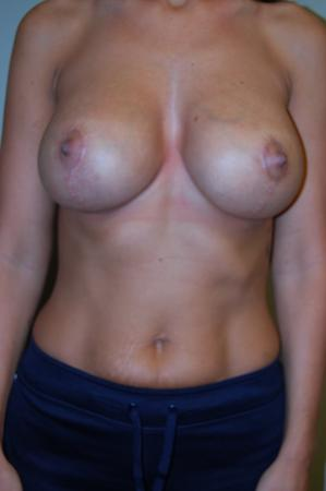 Traditional Mastopexy With Implants: Patient 1 - After Image 1
