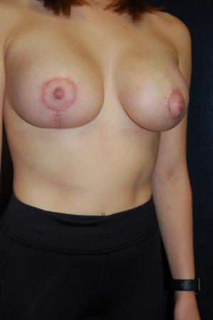 Traditional Mastopexy With Implants: Patient 9 - After Image 2