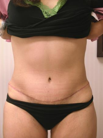 Tummy Tuck: Patient 7 - After Image