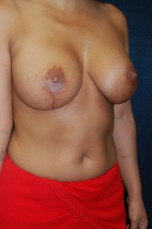 Traditional Mastopexy With Implants: Patient 10 - After Image 2