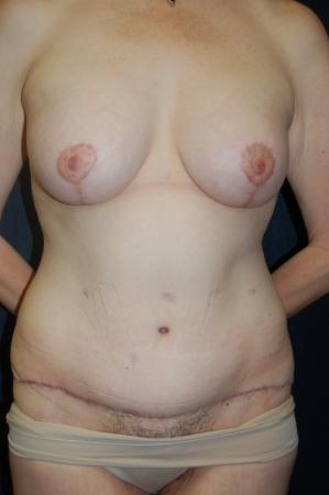 Traditional Mastopexy With Implants: Patient 18 - After Image