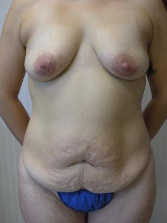 Mommy Makeover: Patient 4 - Before Image