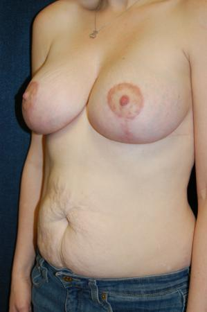 Traditional Mastopexy With Implants: Patient 4 - After Image 2
