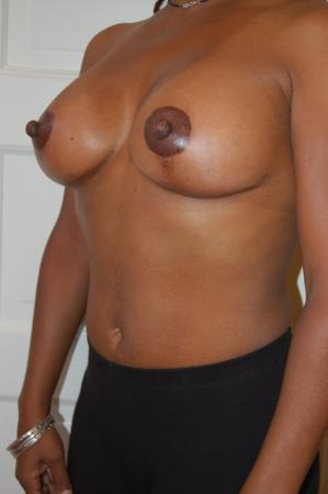 Traditional Mastopexy With Implants: Patient 3 - After Image 2