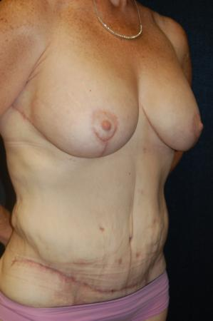 Traditional Mastopexy With Implants: Patient 12 - After Image 2