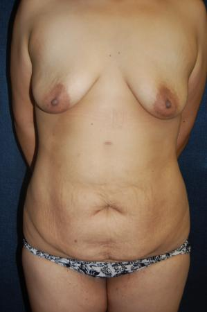 Traditional Mastopexy With Implants: Patient 15 - Before Image