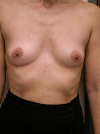 Breast Augmentation: Patient 6 - Before Image