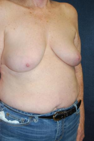 Traditional Mastopexy With Implants: Patient 11 - Before and After Image 2