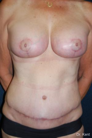 Traditional Mastopexy With Implants: Patient 20 - After Image