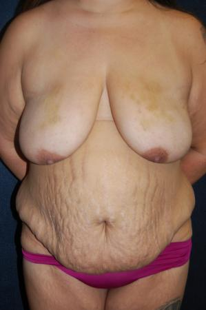 Traditional Mastopexy Without Implants: Patient 8 - Before Image