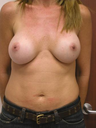 Post Implant Reoperation: Patient 2 - Before Image