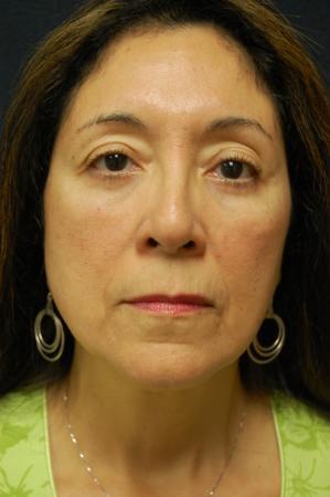 Blepharoplasty: Patient 4 - After Image