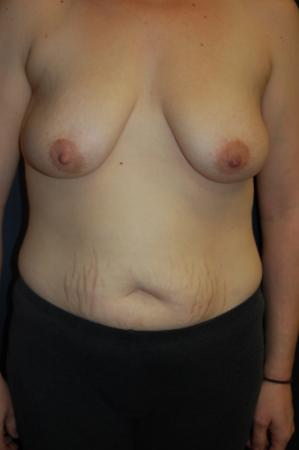 Traditional Mastopexy With Implants: Patient 19 - Before Image
