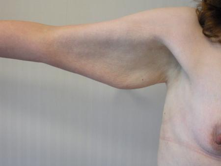 Post Bariatric Reconstruction: Patient 5 - Before Image