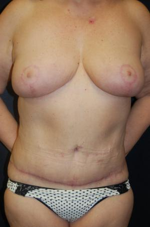 Traditional Mastopexy Without Implants: Patient 7 - After Image