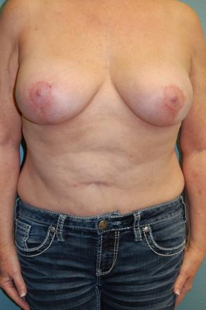 Post Implant Reoperation: Patient 6 - After Image