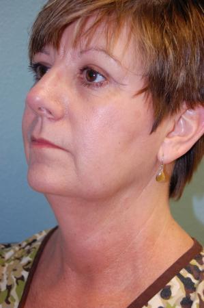 Liposuction: Patient 3 - Before Image