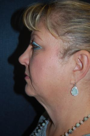 Facelift: Patient 6 - Before and After Image 3
