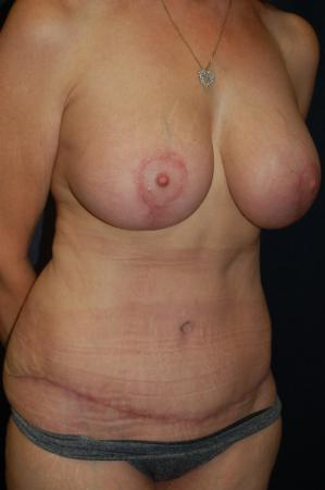 Traditional Mastopexy With Implants: Patient 16 - After Image 3