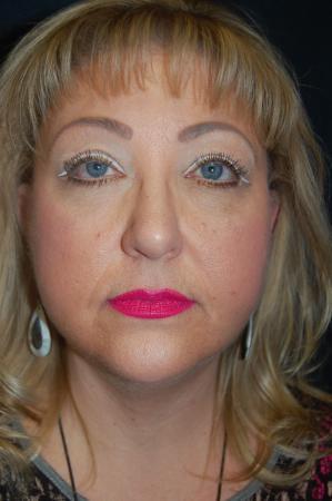 Facelift: Patient 6 - After Image