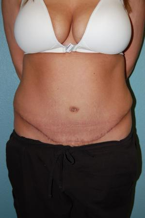 Tummy Tuck: Patient 10 - After Image