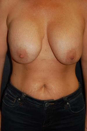 Traditional Mastopexy With Implants: Patient 22 - Before Image
