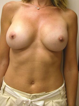 Post Implant Reoperation: Patient 2 - After Image