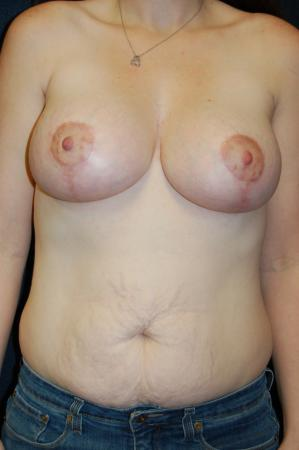 Traditional Mastopexy With Implants: Patient 4 - After Image 1