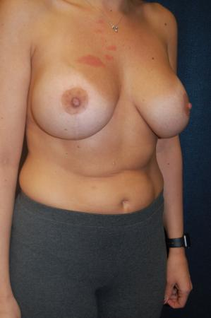 Traditional Mastopexy With Implants: Patient 8 - After Image 2