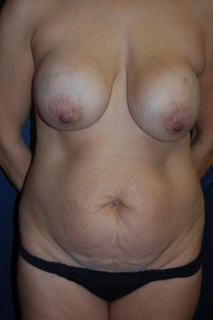 Post Implant Reoperation: Patient 10 - Before Image