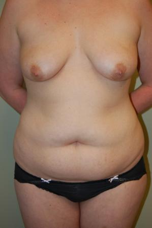Mommy Makeover: Patient 3 - Before Image