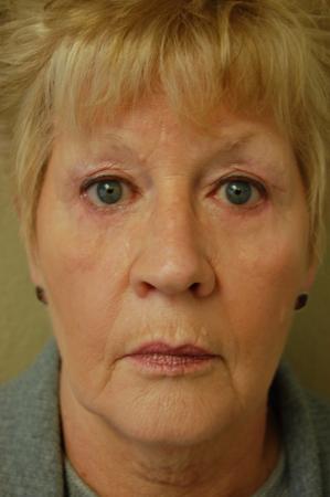 Blepharoplasty: Patient 3 - After Image