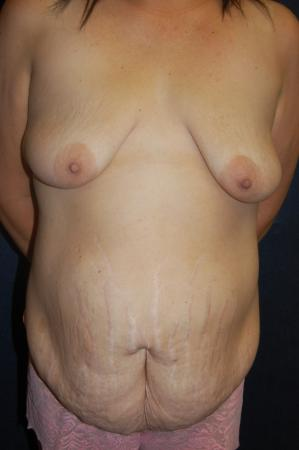 Traditional Mastopexy With Implants: Patient 20 - Before Image